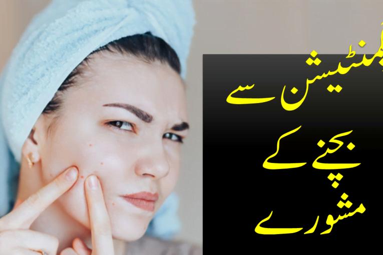 Tips to Avoid Pigmentation