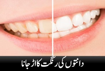 Dental discoloration