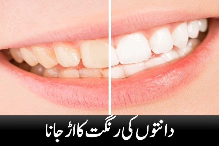 Dental discoloration